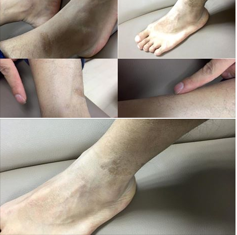 Scars in the ankles