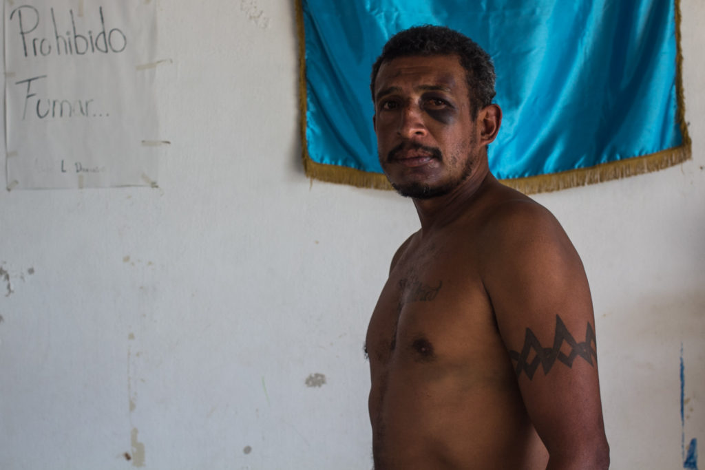 Salvadoran migrant, he was beaten and robbed of all his belongings during a walking course to Arriaga