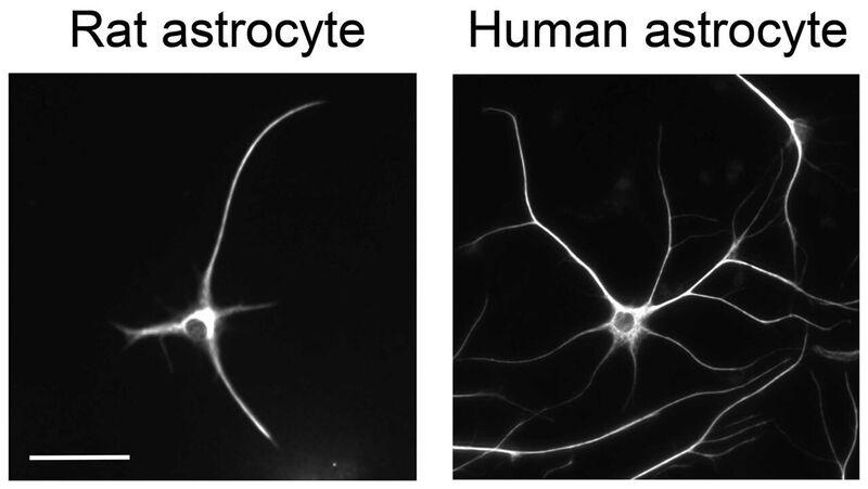 Astrocyctes